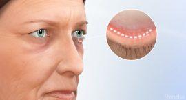 Blepharoplasty - Types of Eye Surgery - Freedom Eye Laser