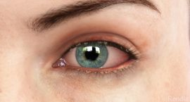 Blepharitis - Corrective Eye Surgery - Freedom Eye Laser