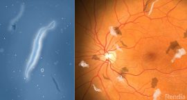 Floaters - Refractive Lens Exchange Surgery - Freedom Eye Laser