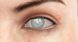 Fuchs - Excess Eyelid Skin - RLE Surgery - Freedom Eye Laser