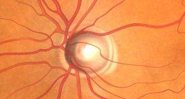 Glaucoma -Eye Laser Clinic - Freedom Eye Laser