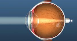 Hyperopia Eye - Refractvie Lens Eschange Cost - Freedom Eye Laser