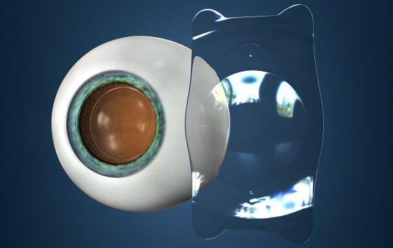 Intraocular Collamer Lens (ICL)