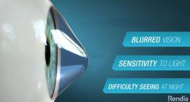 Keratoconus Vision Poster - Refractive Lens Exchange - Freedom Eye Laser