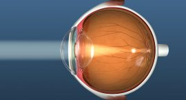 Eye Floater - Laser Eye - Freedom Eye Laser