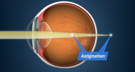 Astigmatism - Laser Surgery - Freedom Eye Laser