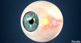 Pinguecula - Lasik - Freedom Eye Laser