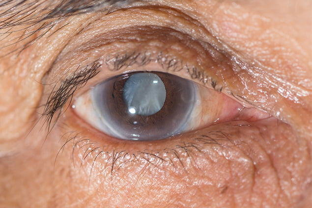 What are cataracts and their causes?