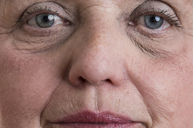 How Old Is Too Old For Eyelid Surgery?