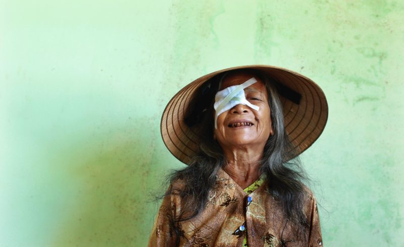 Old Woman with Eye Bandage - RLE Surgery - Freedom Eye Surgery