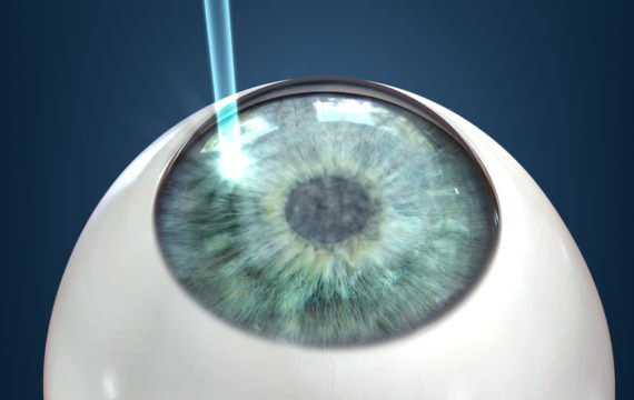 LASIK - 20 to 45 years
